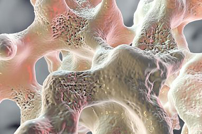 Bone tissue with osteoporosis has more voids than healthy bone