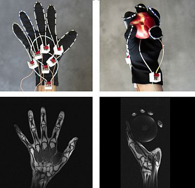 A glove is being developed to enable MRI scans of a moving hand