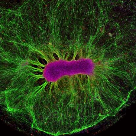 A mini-brain organoid, the center consisting of a clump of neuronal bodies (magenta) surrounded by an intricate network of branching extensions (green) through which these cells relay information.