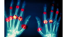 X-ray image depicting joint damage from rheumatoid arthritis