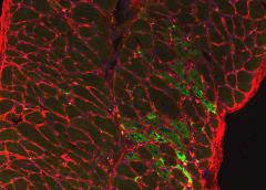 Diaphragm muscle from SU9516 treated dystrophin deficient mouse showing nuclei (blue) myofibers (outlined in red) and regenerating muscle fibers (green).