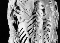 Photo of a skeleton of FOP patient.